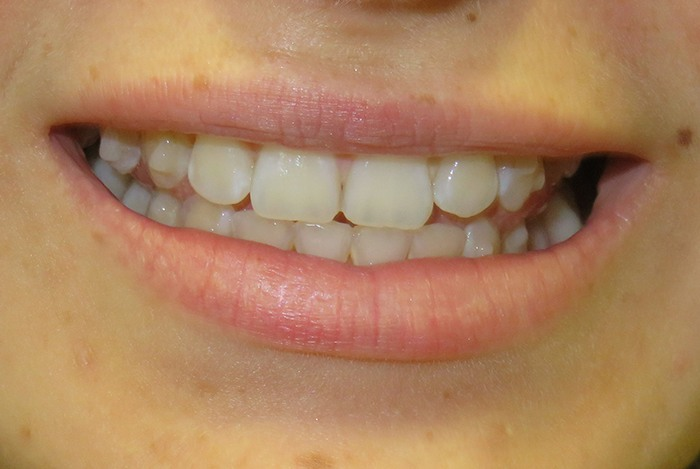 Midcourse Invisalign after