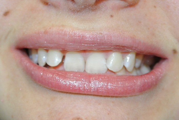 Midcourse Invisalign before