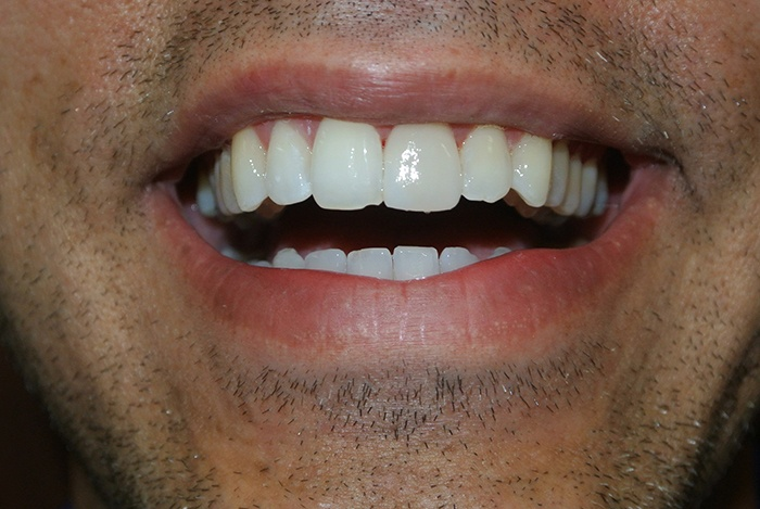 Crowns Over Root Canal Tooth after