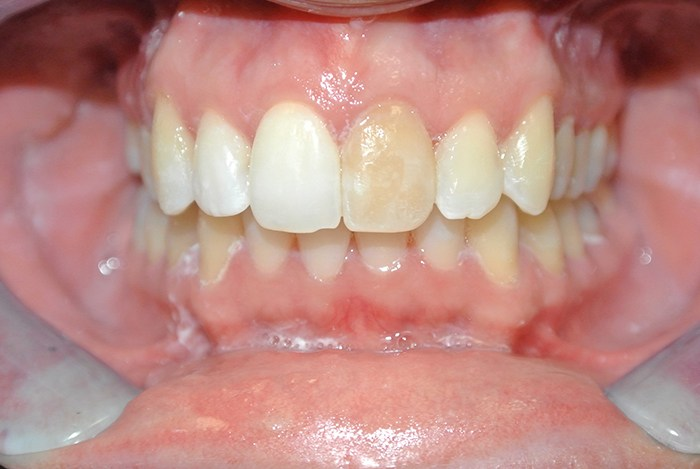 Crowns Over Root Canal Tooth before
